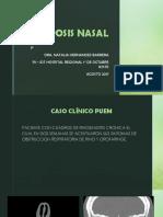 Poliposis Nasal