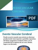 Enfermedad Vacular Cerebral