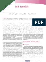 inciciones del torax shugarbakkerd.pdf