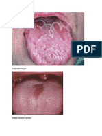 Geographic tongue.docx