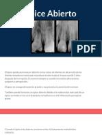endodoncia apice abierto.pptx