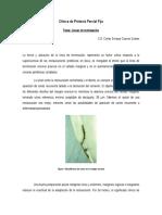 Lineas de Terminacion Clinica de Protesis Parcial Fija (1)
