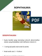 XEROPHTHALMIA.ppt