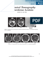 Chapter 1 CT Hypertensity Lesion