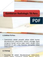 163472419 Gambaran Radiologis TB Paru