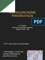 Adénocarcinome pancréatique