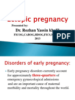 3. Ectopic Pregnancy
