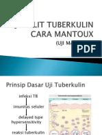2. Uji Tuberkulin