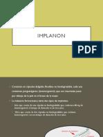 Implant e