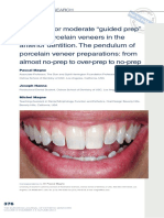 "The Case for Moderate ""Guided Prep"" Indirect Porcelain Veneers in the Anterior Dentition. the Pendulum of Porcelain Veneer Preparations- From Almost No-prep to Over-prep to No-prep"