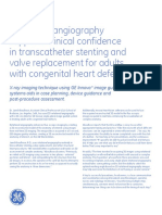 Rotational Angiography Supports Clinical Confidence