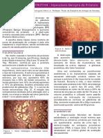 Uropatia Obstrutiva Hiperplasia Benigna Da Prostata