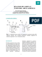 coartacion de la aorta, pediatria.pdf