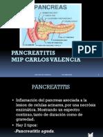 2939398 Pancreatitis