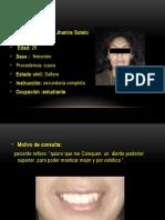 caso clinico de implantes dentales