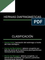 Hernias Diafragmticas