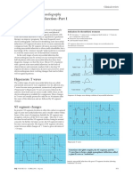 BC of clinical electrocardiography Acute myocardial infarction I II.pdf