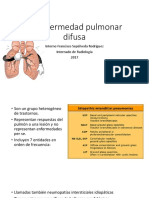 Enf. Pulmonar Difusa - Enfermedad pulmonar intersticial TAC