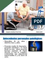 AMPUTACIÓN SUPRACONDILIA Verdadero.pptx