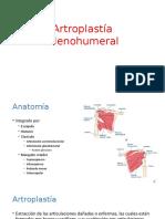 Artroplastía Glenohumeral