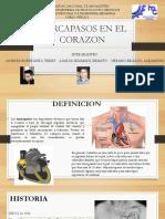 Marcapasos en El Corazon