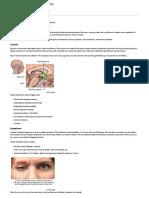 Cluster Headache_ MedlinePlus Medical Encyclopedia