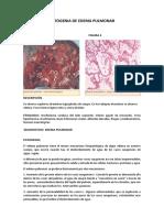 Patogenia de Edema Pulmonar