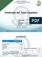 Sindrome de Túnel Carpiano