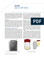 Focus on Rotator Cuff Tears