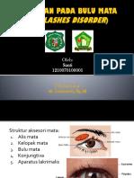 Kelainan Pada Bulu Mata (Eyelashes Disorder)