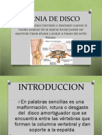 herniadiscal
