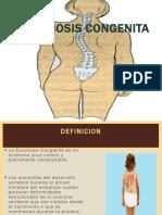 Escoliosis Congenita - Copia
