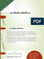 La Rótula Plástica