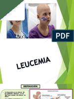 leucemia-161208210557