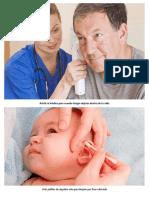 Asistir Al Médico Para Cuando Tengas Objetos Dentro de Tu Oído