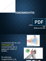 tenosinovitis