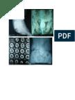 tugas radiologi 4