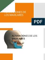 Alteraciones de Los Maxilares