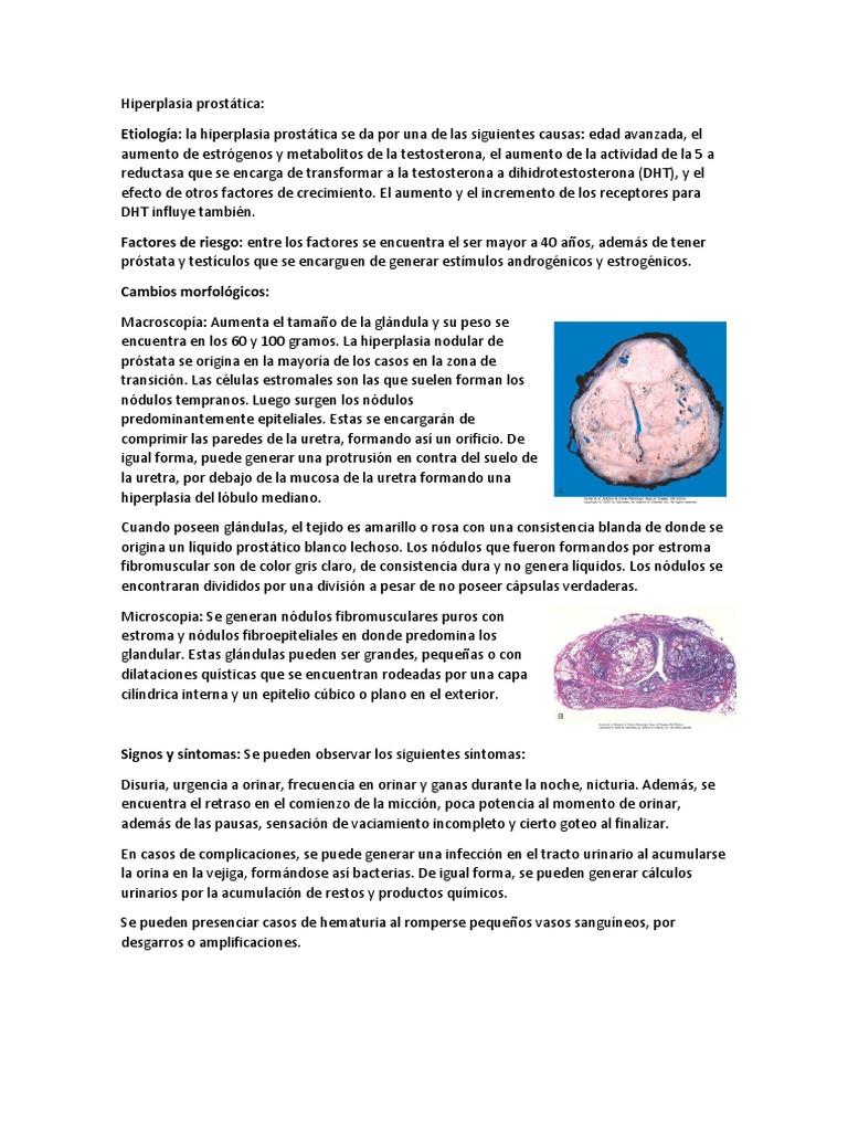 causas prostáticas nodulares