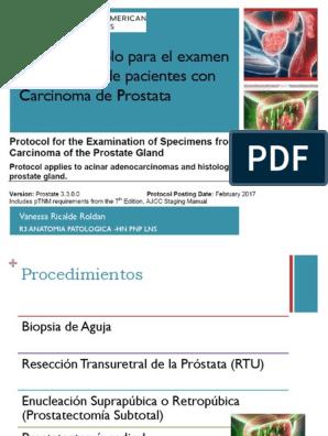 operación de próstata geason 7 3 4 grupo 2 isup- who 2020 2