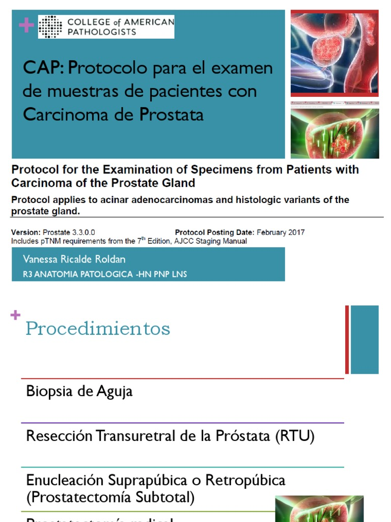 adenocarcinoma de próstata 3 3 0