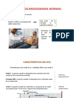 ELECTROCARDIOGRAMA NORMAL.pptx
