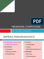 Neumonía Complicada.pptx