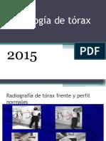 Radiografia de torax.pptx