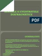 Herniile Si Eventratiile Diafragmatice