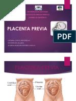 placenta-previa-exposicion.pptx