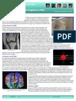 Imagen Por Resonancia Magnética (IRM)
