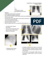 TÓRAX Generalidades Radiologicas