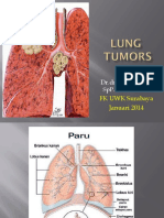 LUNG TUMOR (1).pptx