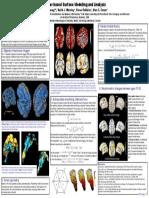 brain source localization